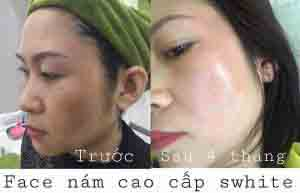 kem-face-nam-cao-cap-cua-swhite-hinh3